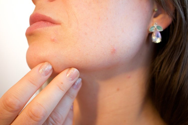 Welke producten zijn goed voor mijn huid met bijvoorbeeld acné?